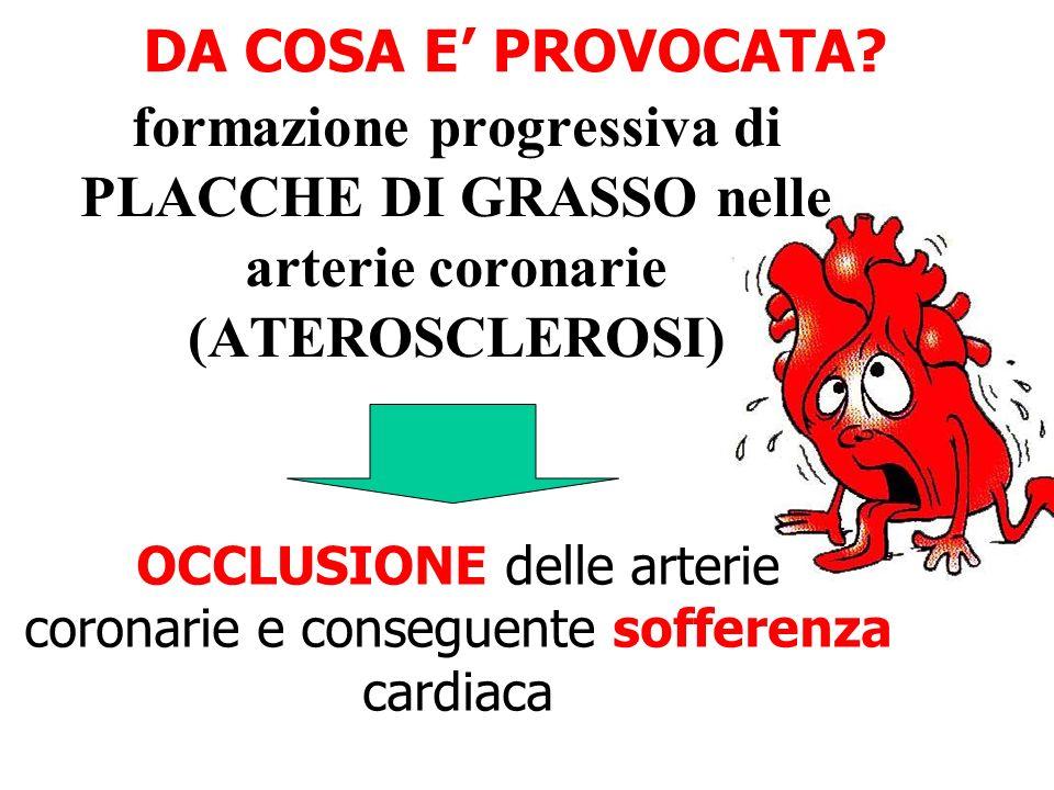 OCCLUSIONE delle arterie coronarie e conseguente sofferenza cardiaca
