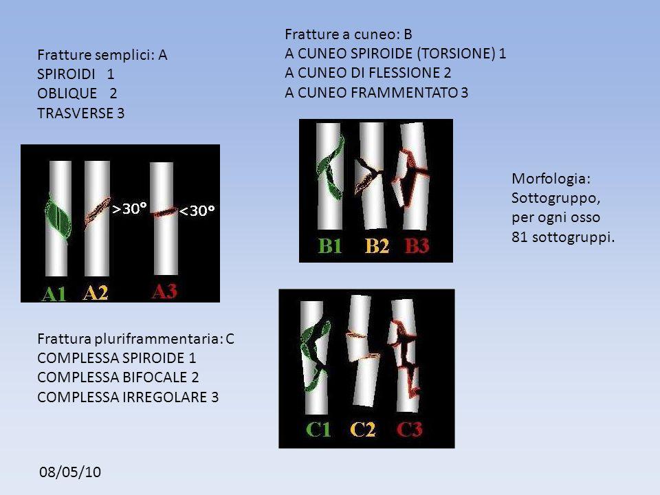 Fratture a cuneo: B A CUNEO SPIROIDE (TORSIONE) 1. A CUNEO DI FLESSIONE 2. A CUNEO FRAMMENTATO 3.