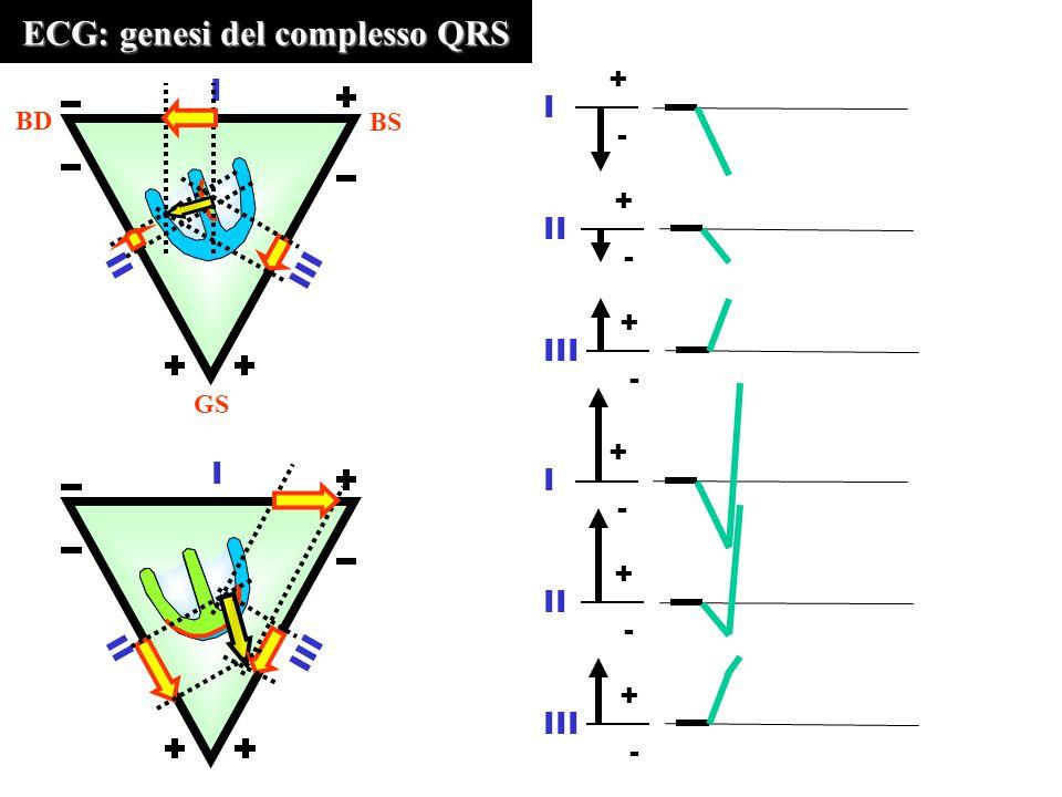 ECG: genesi del complesso QRS