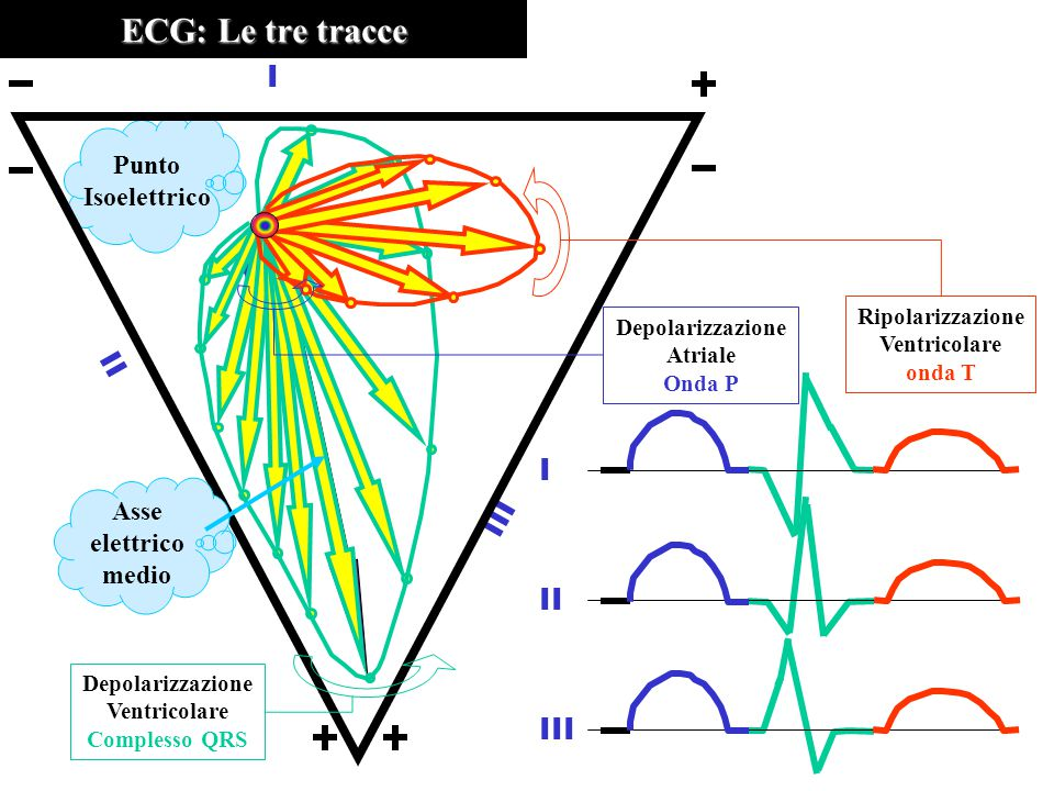 ECG: Le tre tracce I II III Punto Isoelettrico Asse elettrico medio