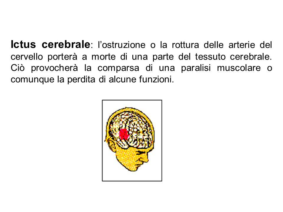 Ictus cerebrale: l'ostruzione o la rottura delle arterie del cervello porterà a morte di una parte del tessuto cerebrale. Ciò provocherà la comparsa di una paralisi muscolare o comunque la perdita di alcune funzioni.