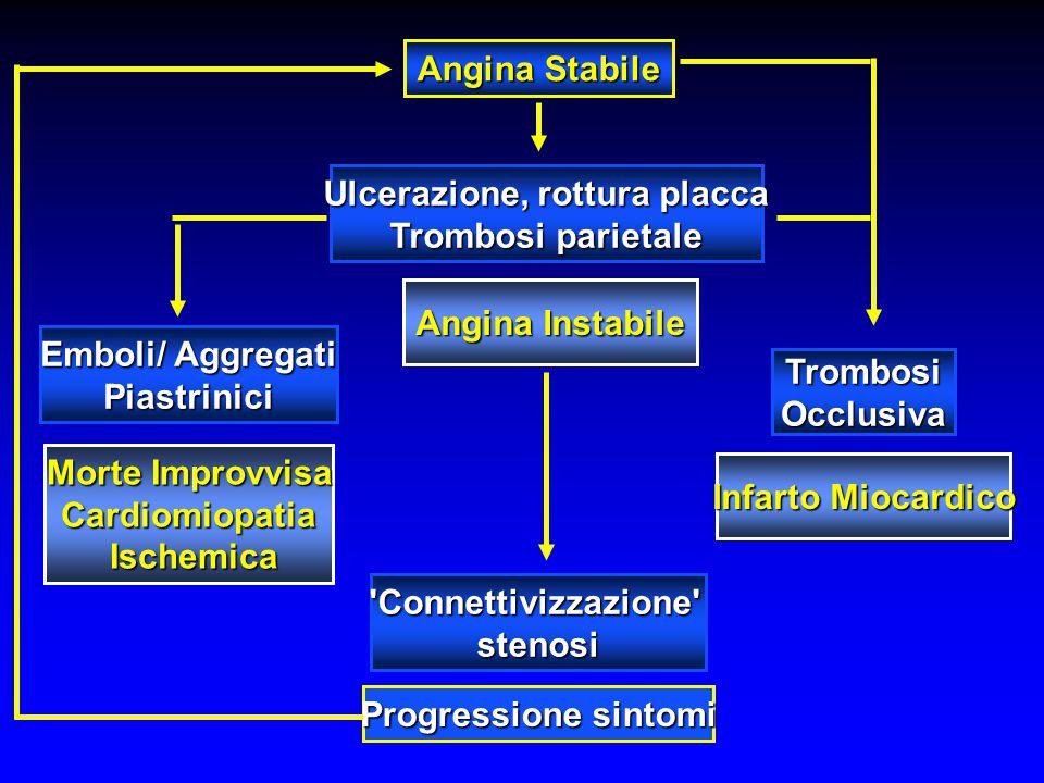Ulcerazione, rottura placca Emboli/ Aggregati Piastrinici