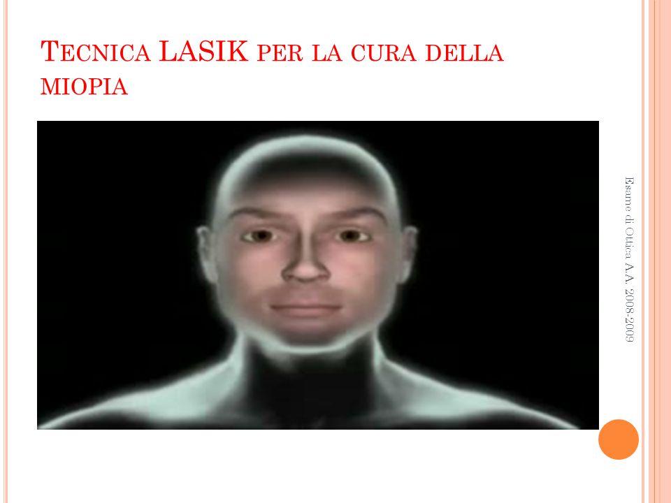 Tecnica LASIK per la cura della miopia
