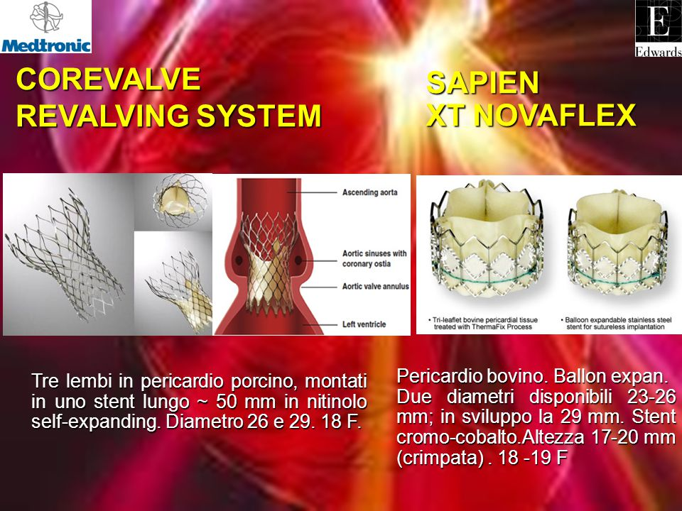 COREVALVE SAPIEN XT NOVAFLEX REVALVING SYSTEM