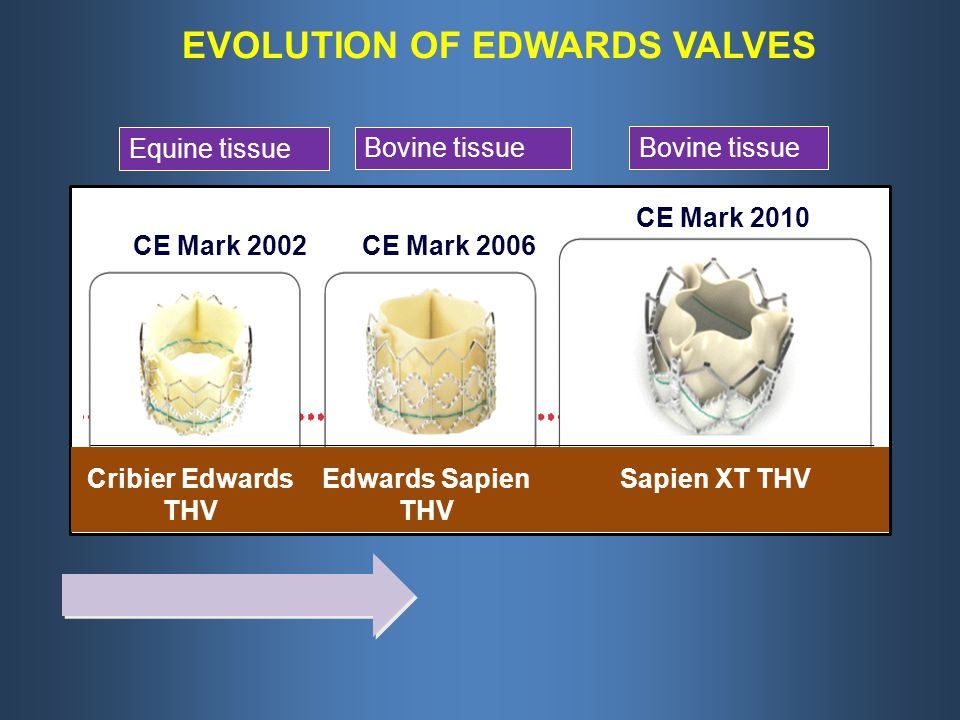 EVOLUTION OF EDWARDS VALVES