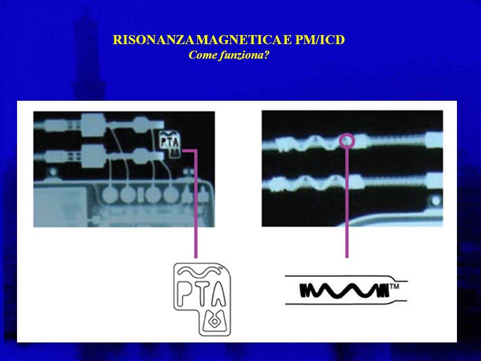 RISONANZA MAGNETICA E PM/ICD