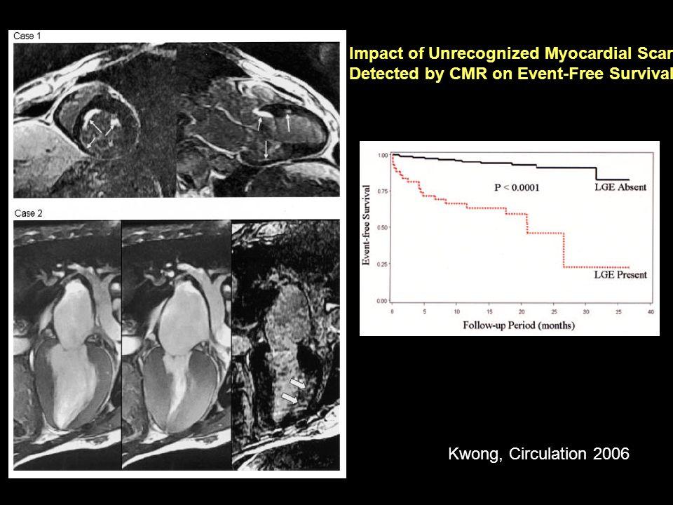 Impact of Unrecognized Myocardial Scar