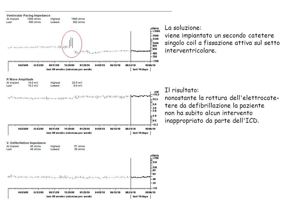 La soluzione: viene impiantato un secondo catetere. singolo coil a fissazione attiva sul setto. interventricolare.