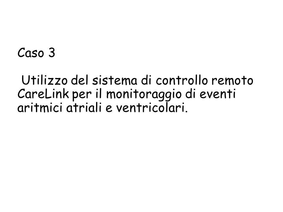 Caso 3 Utilizzo del sistema di controllo remoto CareLink per il monitoraggio di eventi aritmici atriali e ventricolari.