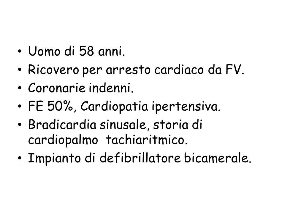 Uomo di 58 anni. Ricovero per arresto cardiaco da FV. Coronarie indenni. FE 50%, Cardiopatia ipertensiva.