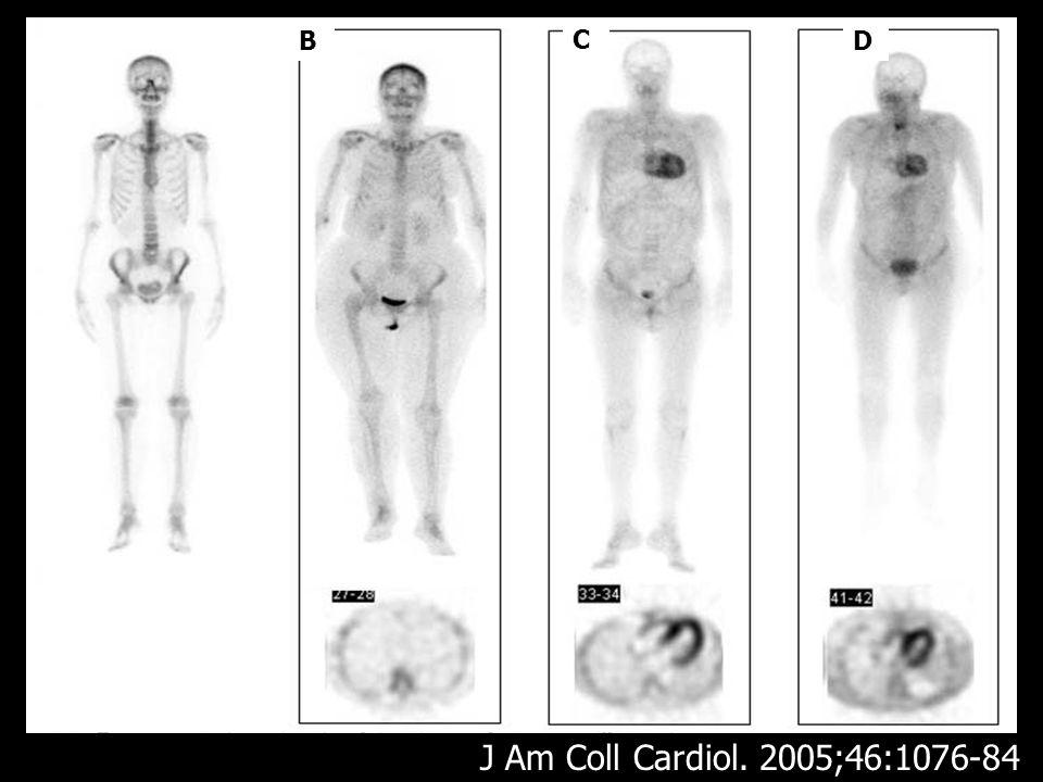 B C D J Am Coll Cardiol. 2005;46:1076-84