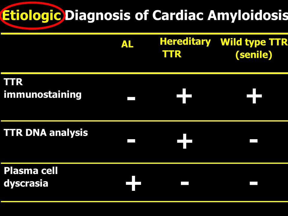 Etiologic Diagnosis of Cardiac Amyloidosis