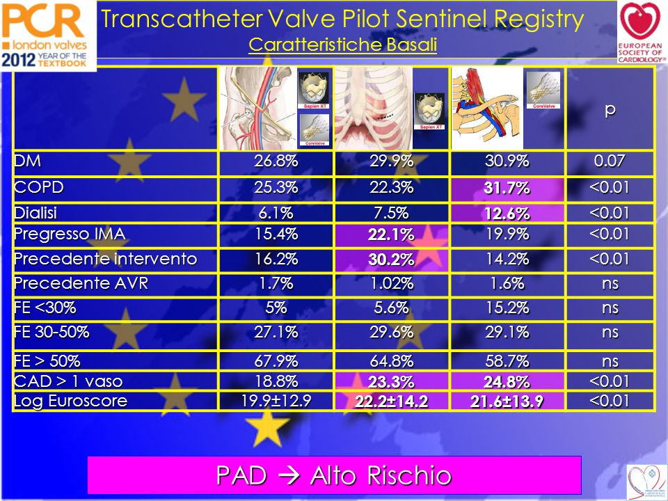 PAD  Alto Rischio Transcatheter Valve Pilot Sentinel Registry