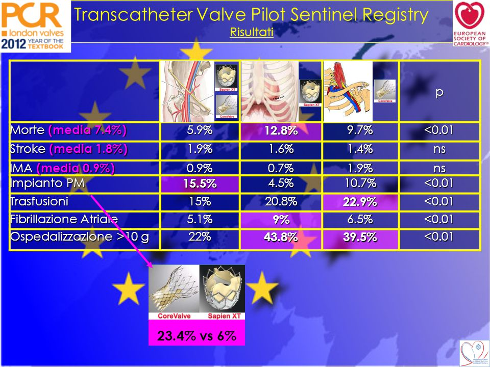 Transcatheter Valve Pilot Sentinel Registry