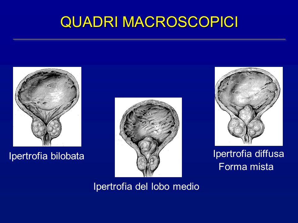 QUADRI MACROSCOPICI Ipertrofia diffusa Ipertrofia bilobata Forma mista