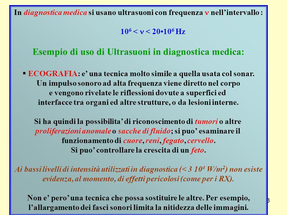Esempio di uso di Ultrasuoni in diagnostica medica: