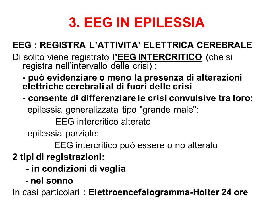 3. EEG IN EPILESSIA EEG : REGISTRA L'ATTIVITA' ELETTRICA CEREBRALE