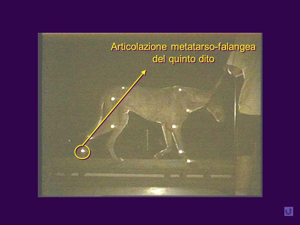 Articolazione metatarso-falangea