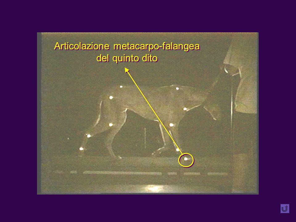 Articolazione metacarpo-falangea