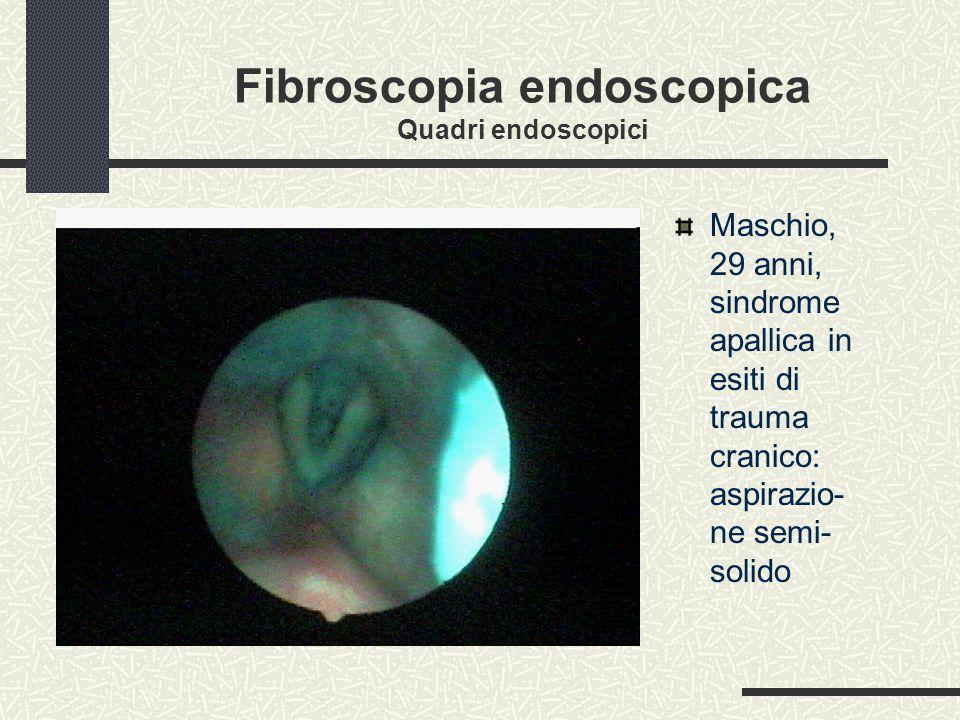 Fibroscopia endoscopica Quadri endoscopici
