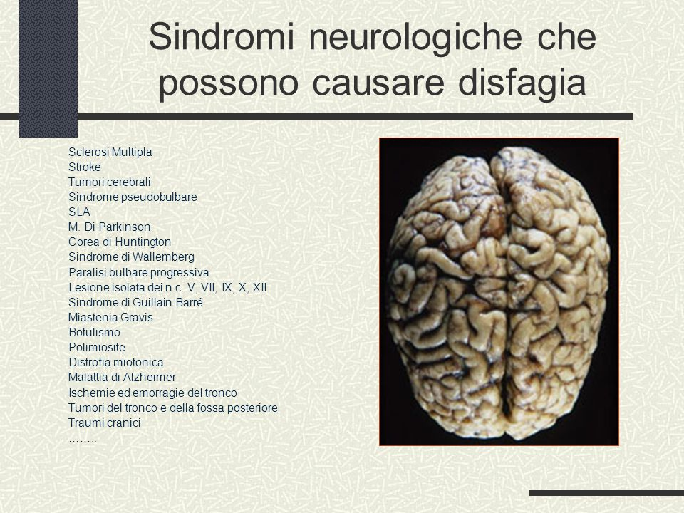 Sindromi neurologiche che possono causare disfagia