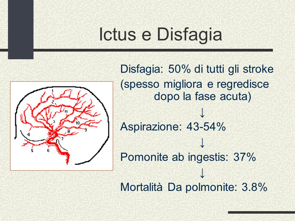 Ictus e Disfagia Disfagia: 50% di tutti gli stroke