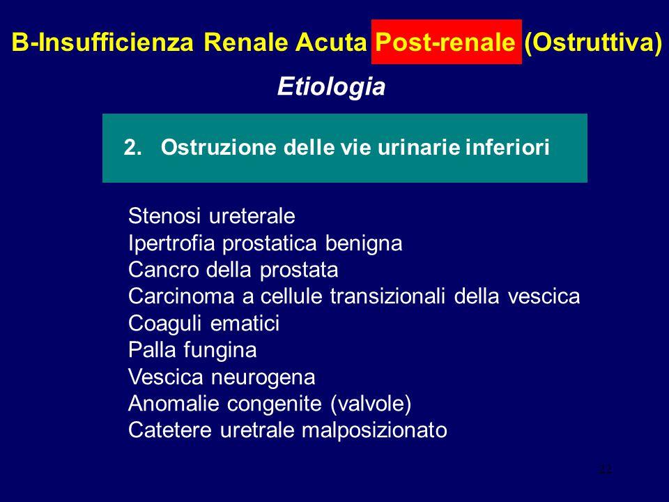 B-Insufficienza Renale Acuta Post-renale (Ostruttiva) Etiologia