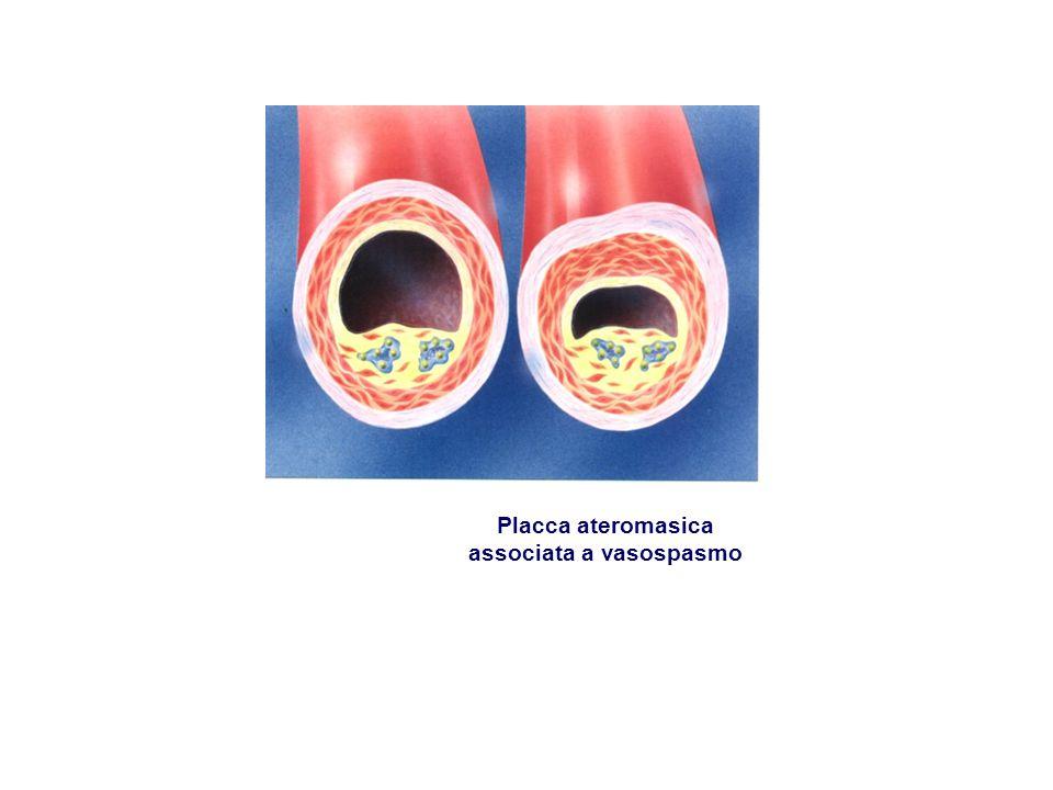 associata a vasospasmo