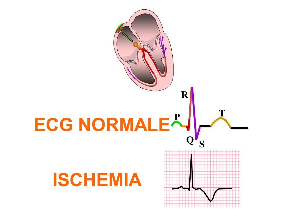 P Q R S T ECG NORMALE ISCHEMIA