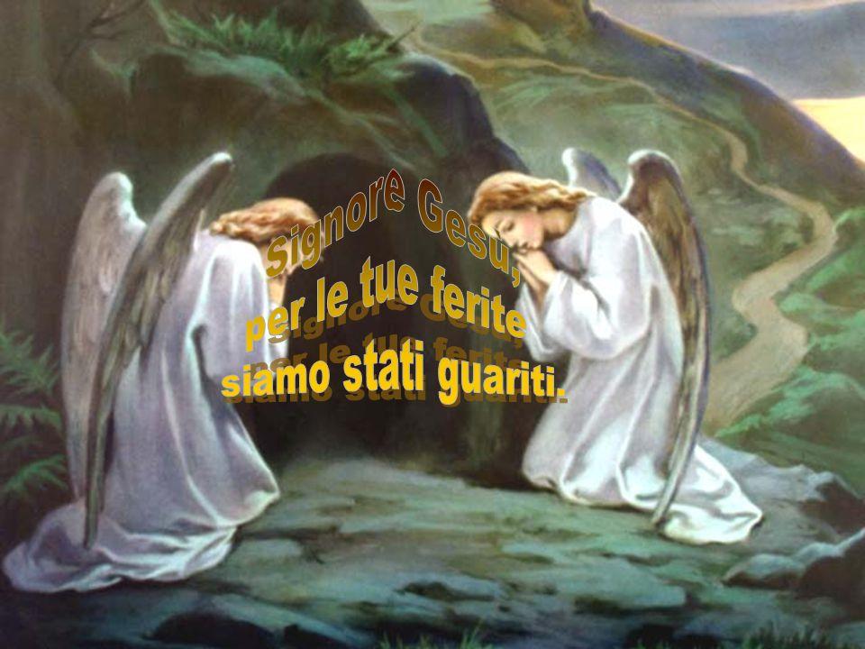 Signore Gesù, per le tue ferite siamo stati guariti.