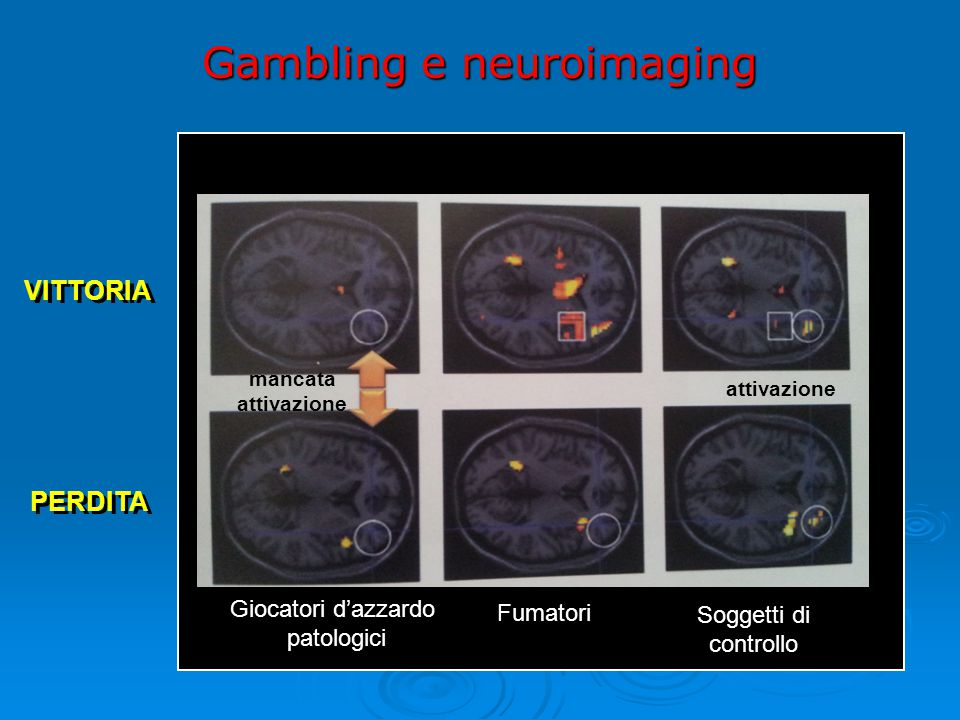 Gambling e neuroimaging