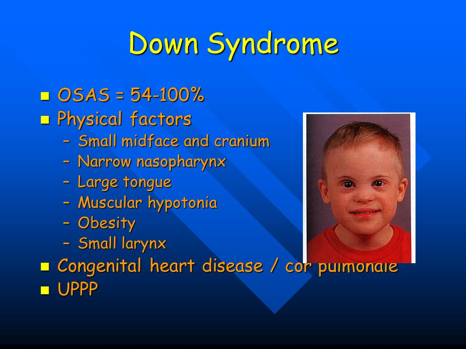 Down Syndrome OSAS = 54-100% Physical factors