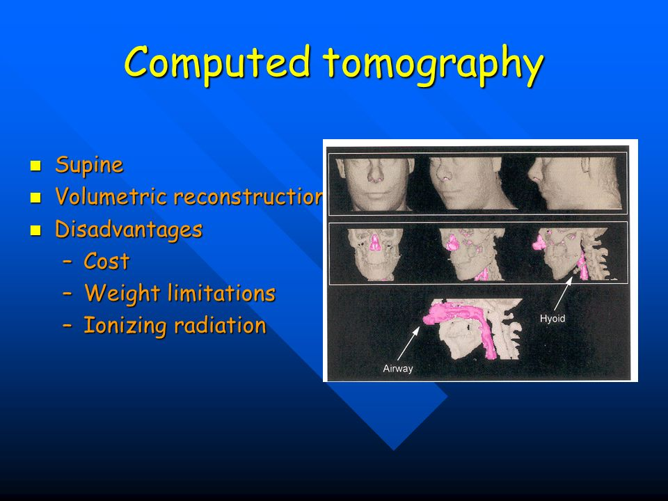Computed tomography Supine Volumetric reconstruction Disadvantages