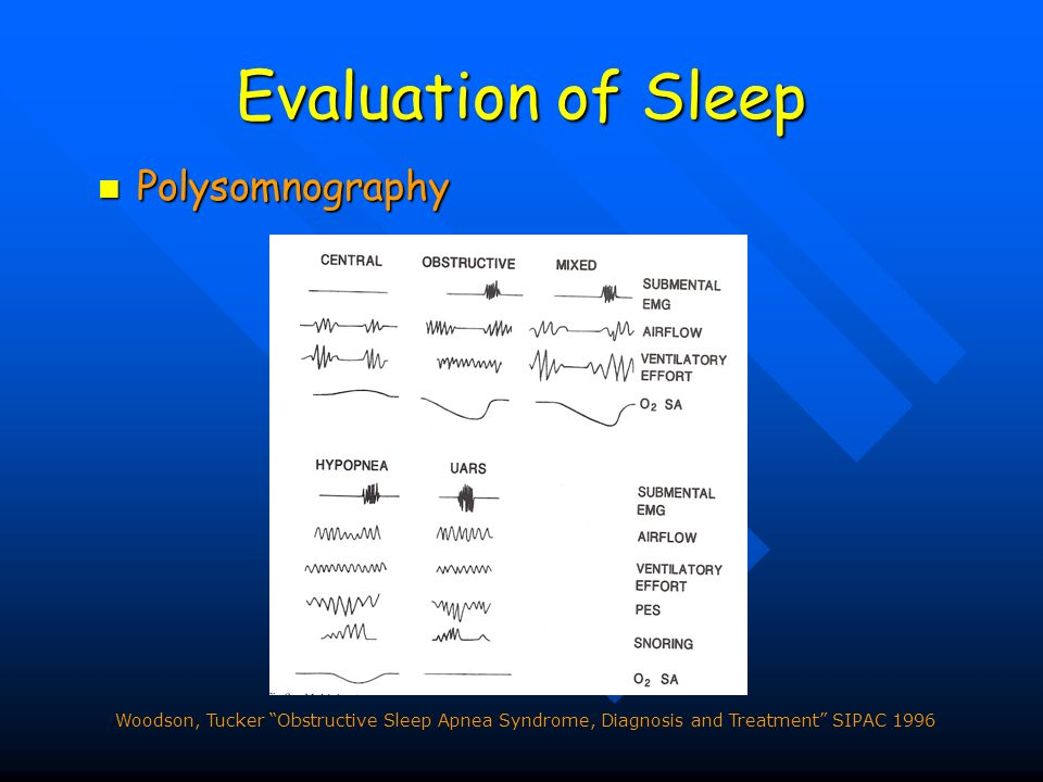 Evaluation of Sleep Polysomnography