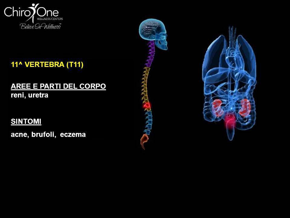11^ VERTEBRA (T11) AREE E PARTI DEL CORPO reni, uretra SINTOMI acne, brufoli, eczema