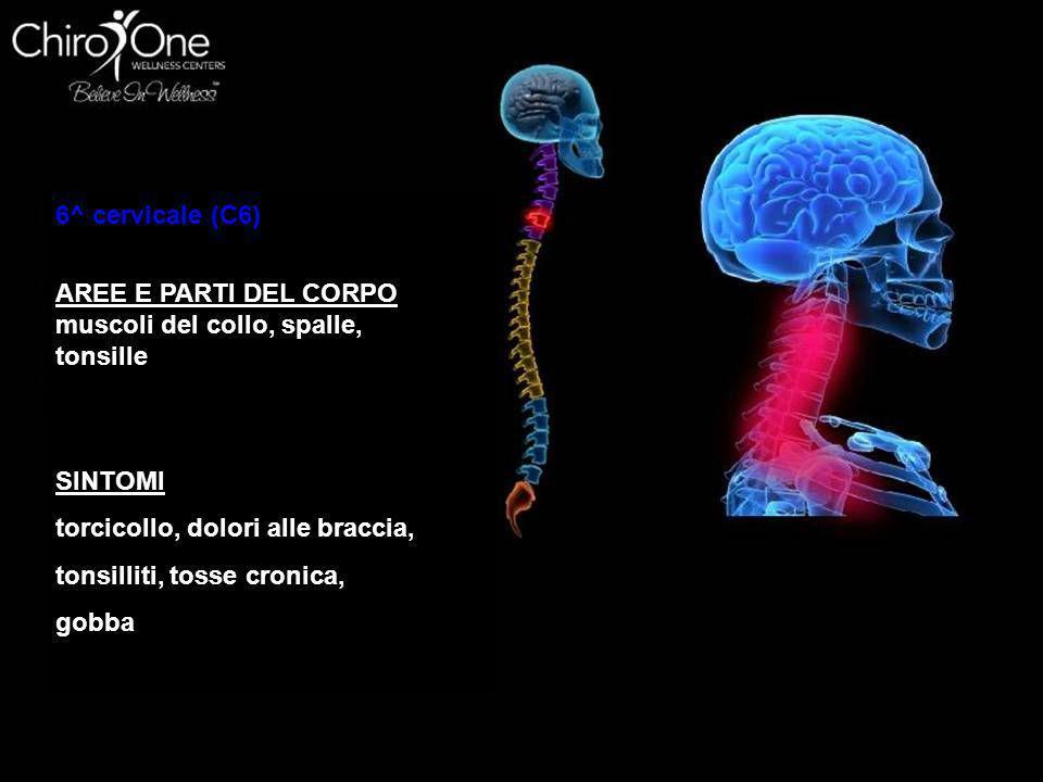 6^ cervicale (C6) AREE E PARTI DEL CORPO. muscoli del collo, spalle, tonsille. SINTOMI. torcicollo, dolori alle braccia,