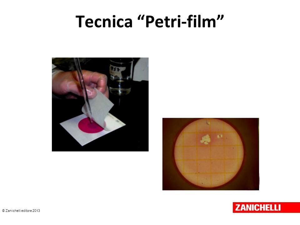 Tecnica Petri-film