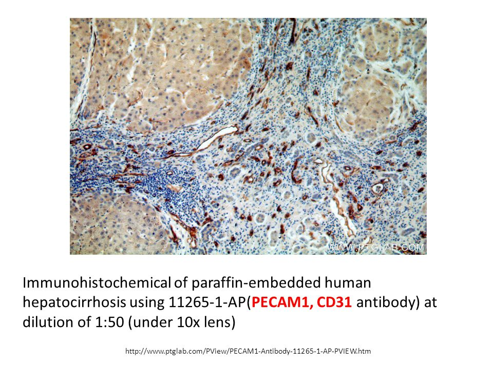 Immunohistochemical of paraffin-embedded human hepatocirrhosis using 11265-1-AP(PECAM1, CD31 antibody) at dilution of 1:50 (under 10x lens)