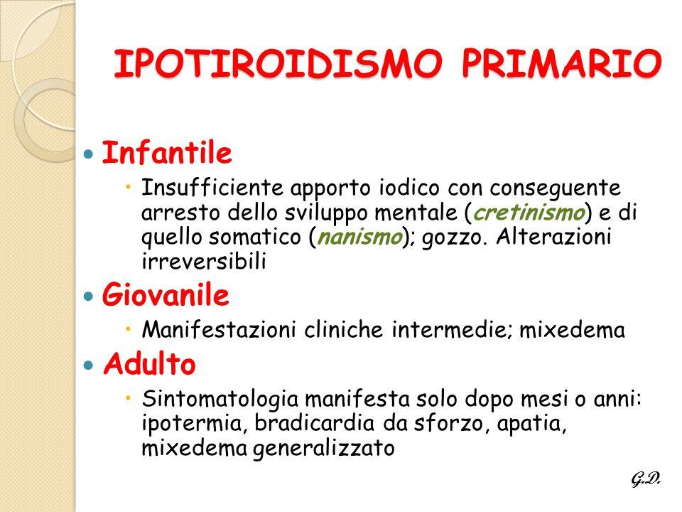 IPOTIROIDISMO PRIMARIO