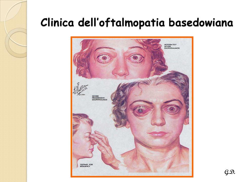 Clinica dell'oftalmopatia basedowiana