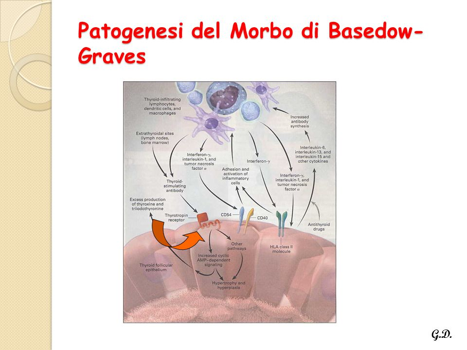 Patogenesi del Morbo di Basedow-Graves