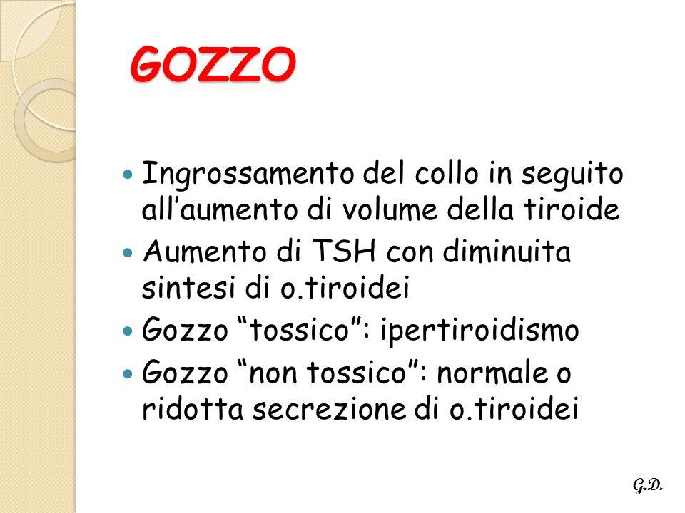 GOZZO Ingrossamento del collo in seguito all'aumento di volume della tiroide. Aumento di TSH con diminuita sintesi di o.tiroidei.