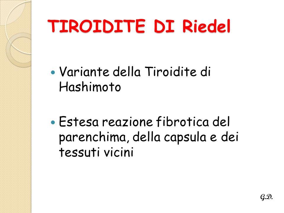 TIROIDITE DI Riedel Variante della Tiroidite di Hashimoto