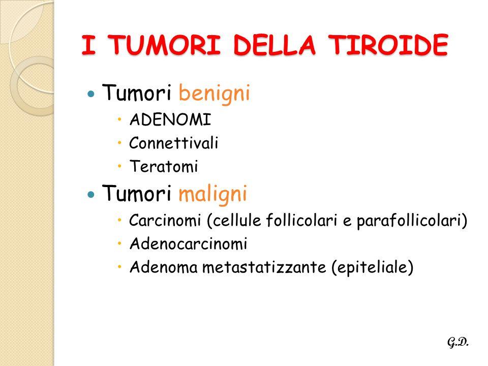 I TUMORI DELLA TIROIDE Tumori benigni Tumori maligni ADENOMI