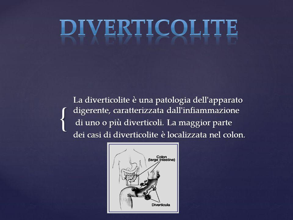 DIVERTICOLITE La diverticolite è una patologia dell apparato digerente, caratterizzata dall infiammazione.
