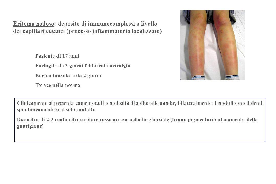 Eritema nodoso: deposito di immunocomplessi a livello dei capillari cutanei (processo infiammatorio localizzato)