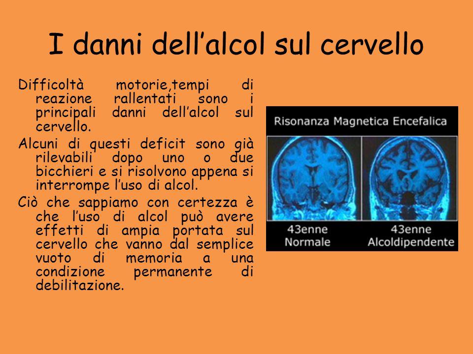I danni dell'alcol sul cervello