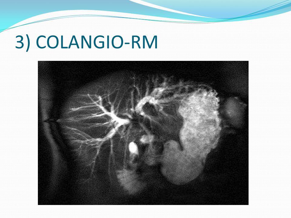 3) COLANGIO-RM