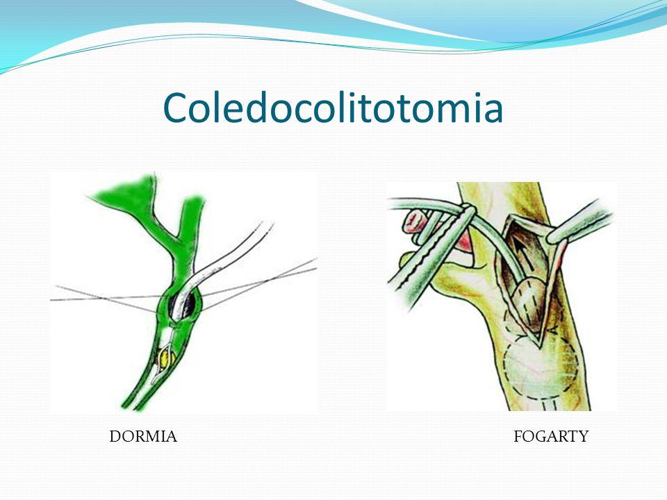 Coledocolitotomia DORMIA FOGARTY