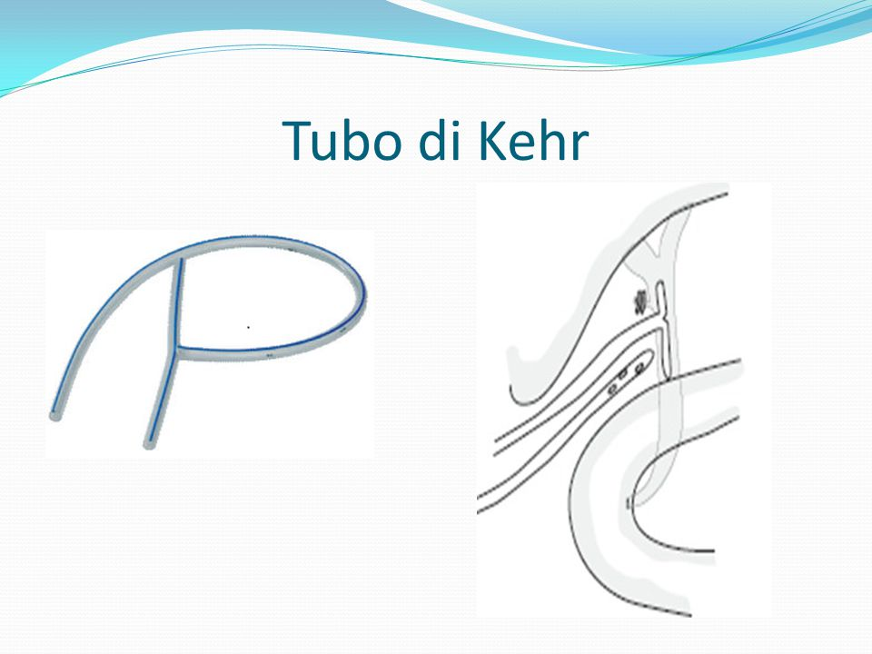 Tubo di Kehr